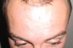 מטופל לפני השתלת שיער