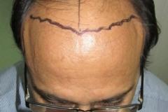 מטופל מפני השתלת שיער
