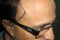 מטופל מפני השתלת שיער מהצד