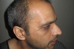 מטופל מארה״ב לפני השתלת שיער