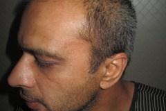 מטופל מארה״ב לפני השתלת שיער מצד שמאל