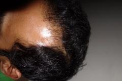 המטופל בריטי לפני השתלת שיער