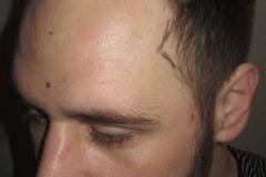 מטופל לפני השתלת שיער מהצד