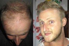 מטופל בריטי לפני ואחרי השתלת שיער