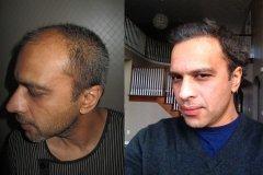 השתלת שיער 5 חודשים אחרי, מטופל מארה״ב