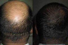 השתלת שיער בכיפה
