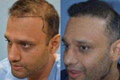 השתלת שיער לגבר