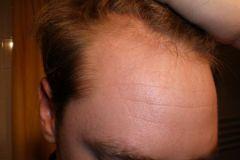 לפני השתלת שיער למטופל מגרמניה