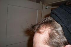 לפני השתלת שיער מהצד מטופל מגרמניה
