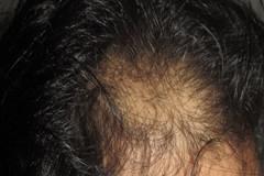 השתלת שיער כושלת