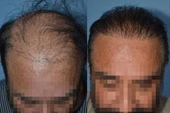 תיקון ניתוח השתלת שיער שהותיר פלאגים