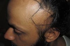 לפני השתלת שיער בעקבות Traction Alopecia