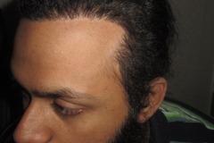 השתלת שיער למטופל אחרי Traction Alopecia לאחר 5 חודשים