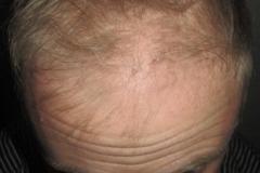 לפני השתלת שיער לפטופל בלונדיני