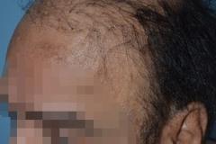 ניתוח תיקון השתלת שיער