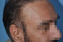 תיקון השתלת שיער