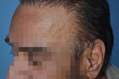 השתלת שיער bht