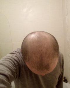מועמד להשתלת שיער
