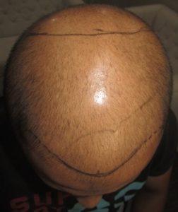 לפני השתלת שיער